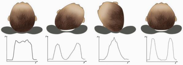 asymmetri i kudde