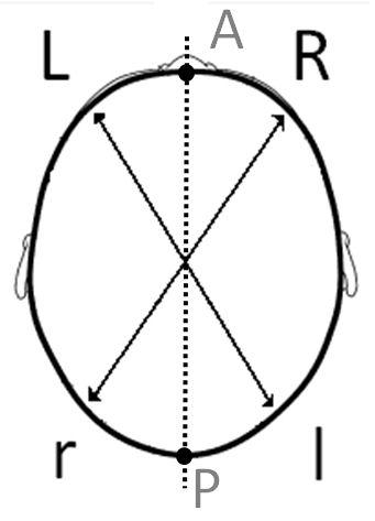 diagonals 1 plagiocephaly